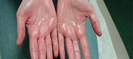 Berpeluh Berlebihan (Hyperhidrosis) dan Rawatannya